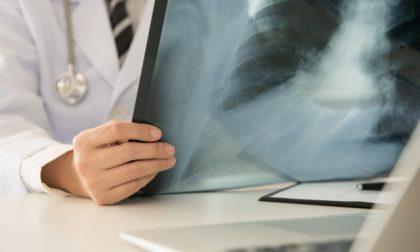 Referti e immagini radiologiche, ora per l'Asst Mantova basta un click