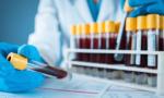 Sì ai test sierologici nei laboratori privati: gli accreditati a Mantova e provincia